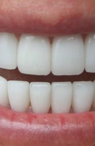 cosmetic-dentistrymethodsfor better teeth