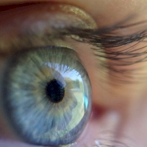 know if you have cataracts